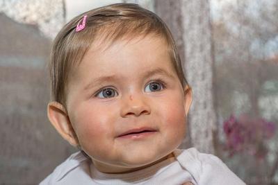 儿童癫痫病症状有哪些呢