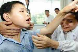 北京治疗癫痫的医院哪家好