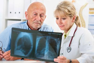 老年癫痫病如何护理比较好